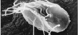 Giardia humans symptoms