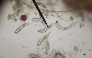 féreg bél paraziták