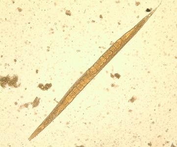 strongyloidosis lárva