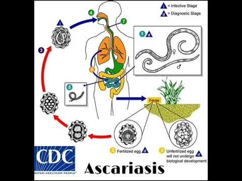 Az orsóférgesség okai, tünetei és kezelése Fertőzés aszcariasis