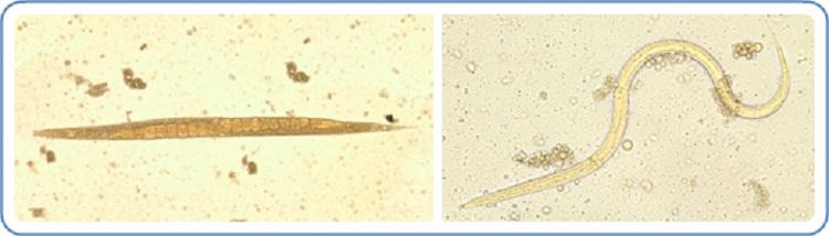strongyloidosis, ahol gyakori széles spektrumú helmint készítmény