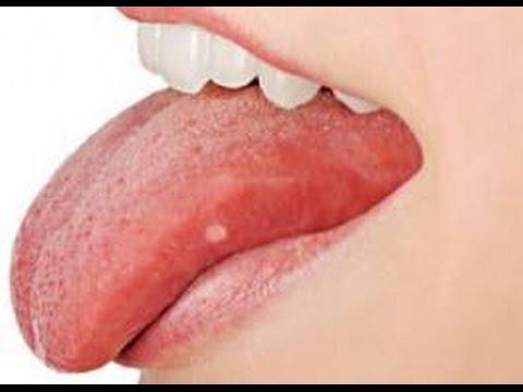a szájban a keserűség szaga van deworming van