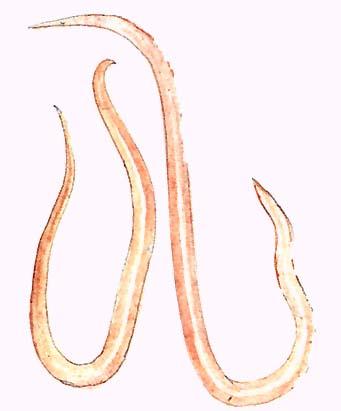 Fonalféreg fertozes tünetei, A Magyarországon előforduló féregfertőzések