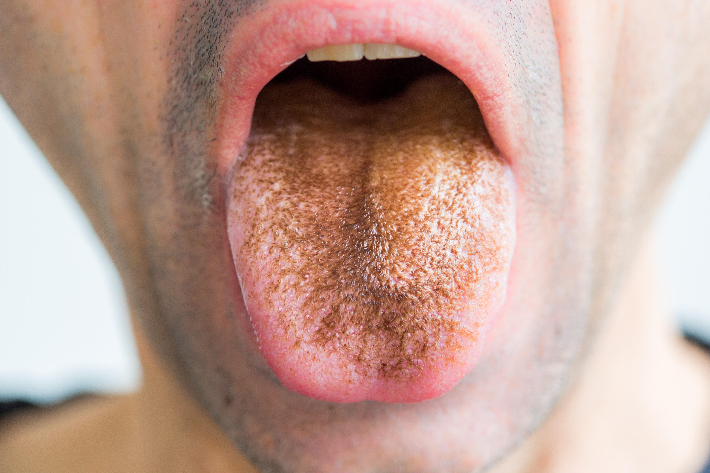 rossz lehelet fehér nyelv gyomor rossz lehelet rákkal