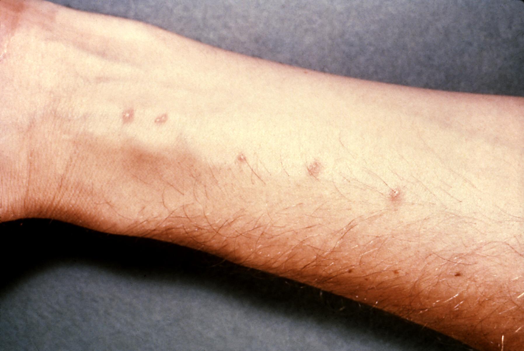 Giardia skin infection. Giardia on skin. Keresés a következőre