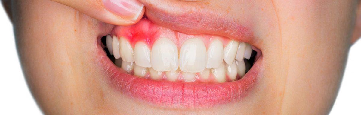 Szájszag kezelése, szájszag megszüntetése | FR Dental Budapest