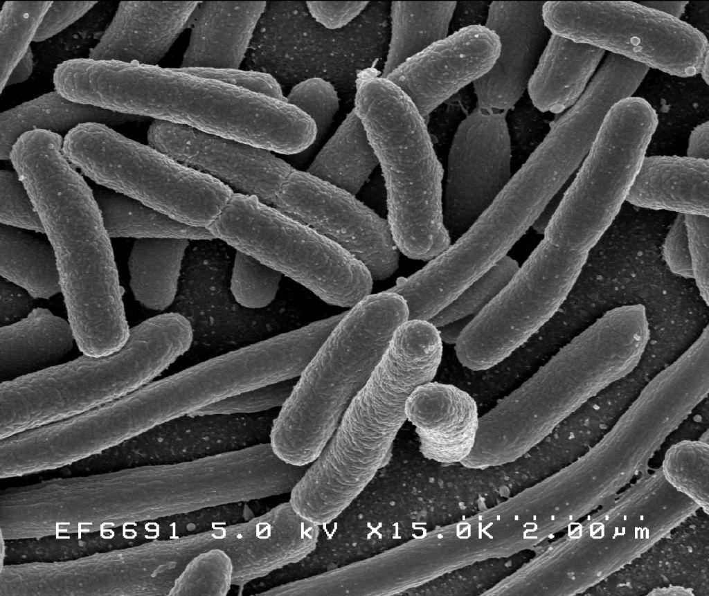 mely parazita lokalizálódik az emberi májban pasziánsz fordítás