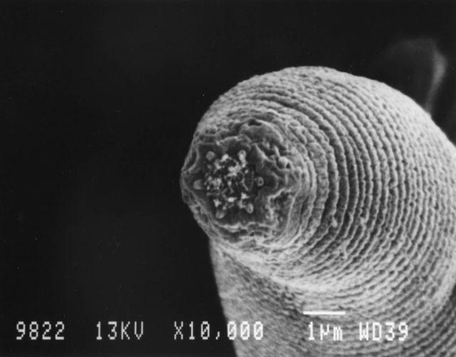 fonalfereg vizben parazitá tisztito készítmények