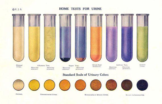 Miről árulkodik a vizelet színe és szaga? Cukorbetegséget, fertőzést is jelezhet
