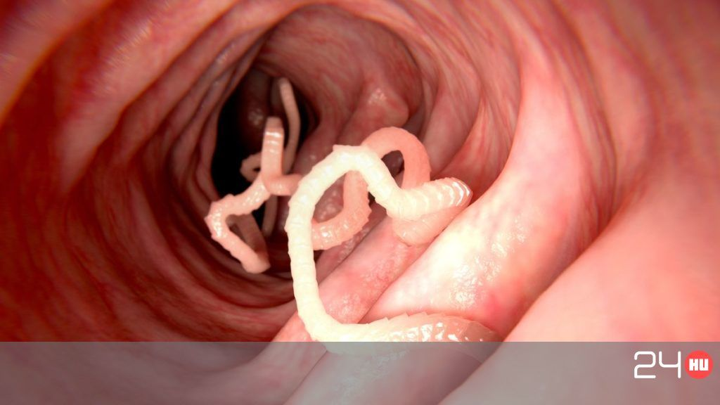 aceton szaga a szájból evés után férgek a mikroszkópban
