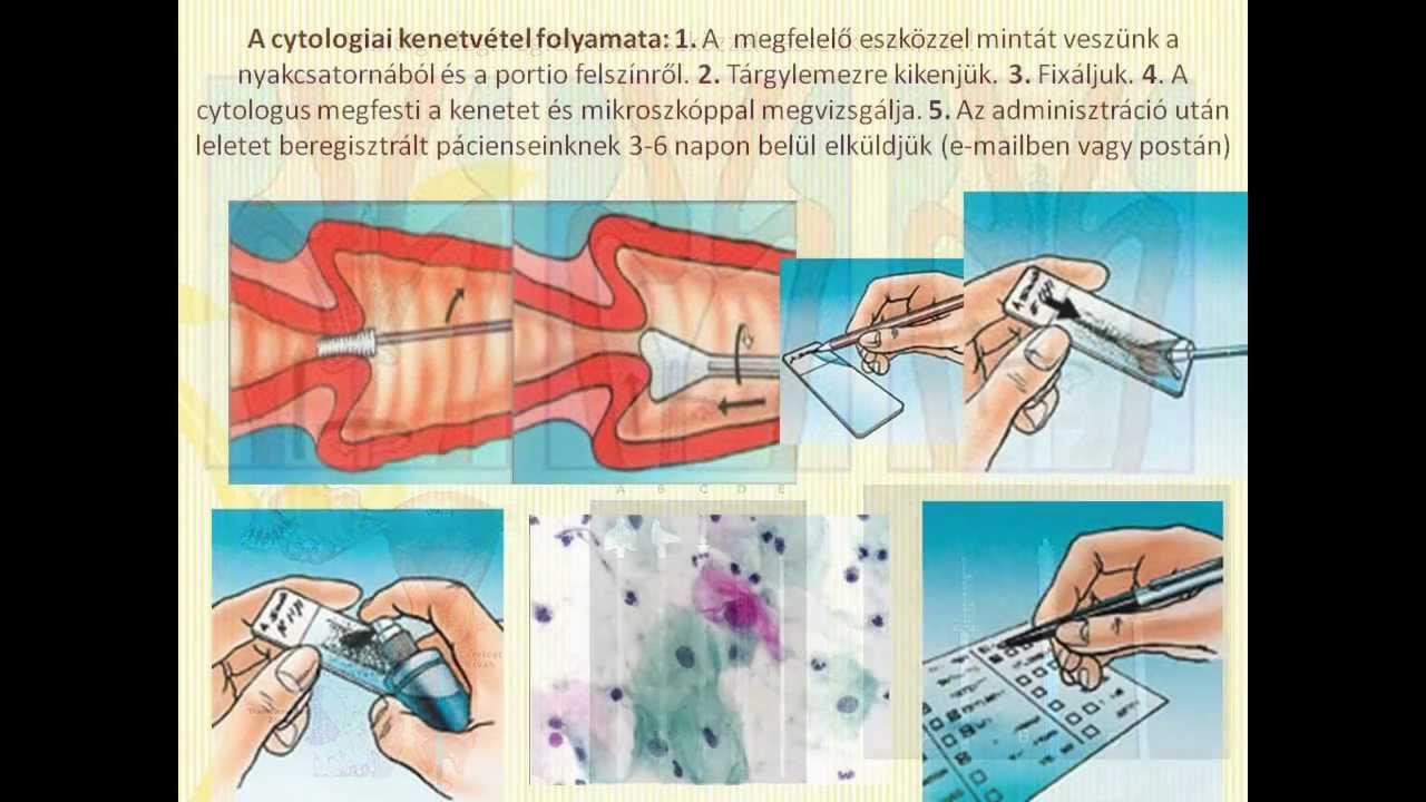 kenet eredmények nőgyógyászat allergia a paraziták kezelése után