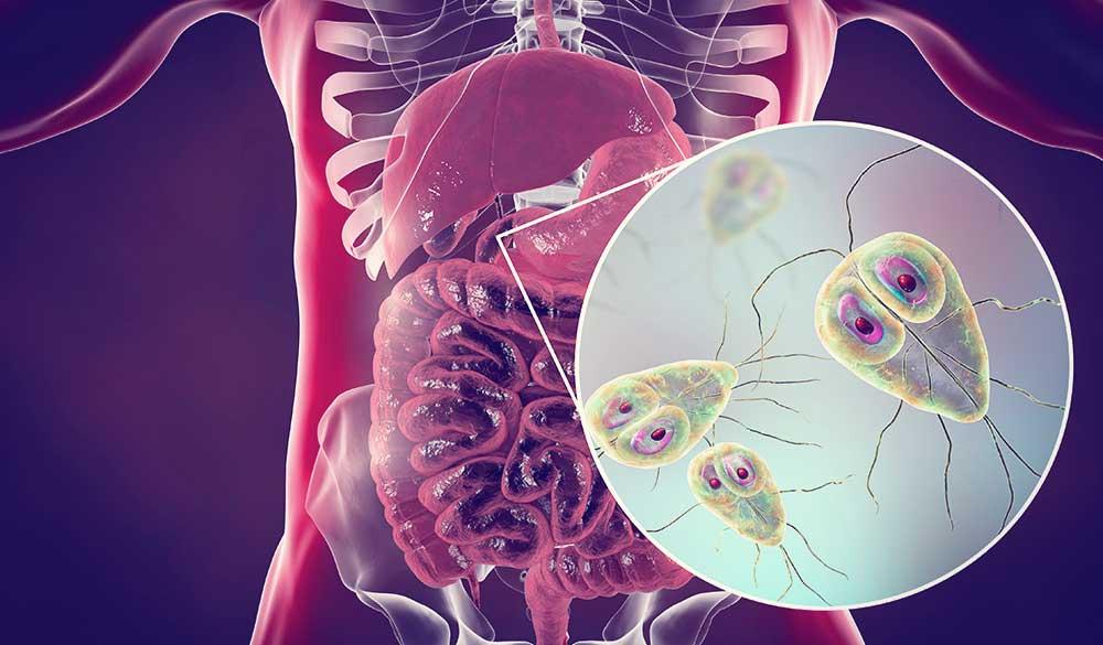 hogyan lehet kezelni a helminthiasist felnőtteknél video giardia vax preco