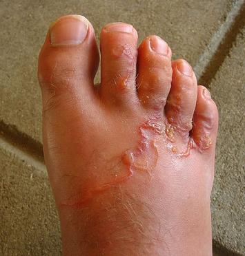 emberi test bőr paraziták a rossz lehelet rossz jel
