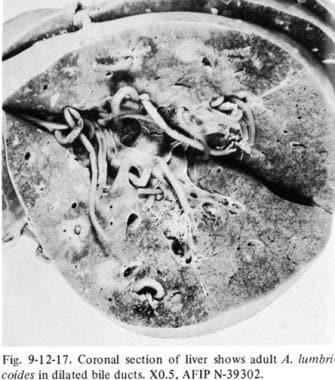 Aszcariasis trichocephalosis, Féreg gyógyszerek - Férgek -
