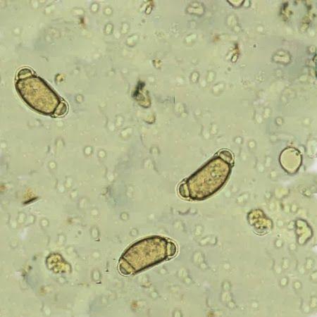 a tojás strongyloidosis enterobiasis hogyan lehet elkészíteni