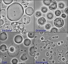 Blastocystis hominis: Békés parazita vagy kórokozó?