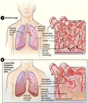 A metformin visszafordítja a tüdőfibrózist