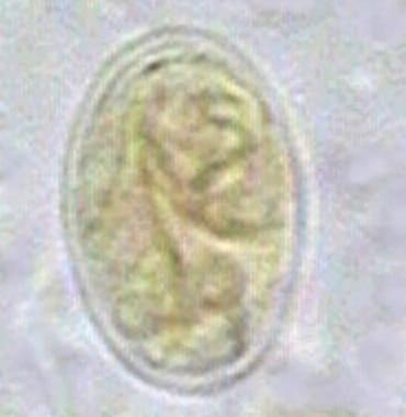Fájl:Giardia lamblia SEM mobil-autouvegezes.hu – Wikipédia