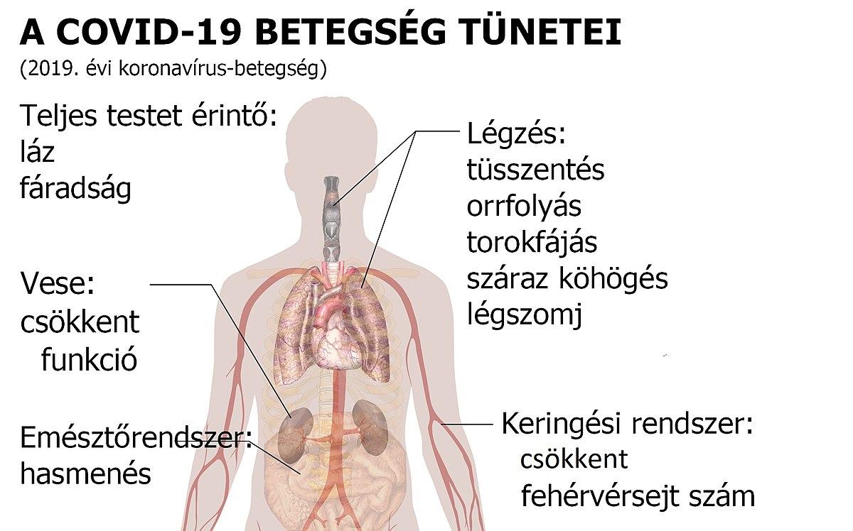 trichinosis tünetei