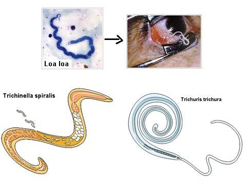 contoh nemathelminthes yang parasit pada manusia