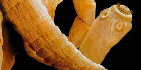 gyógynövény készítmények bél parazitákhoz