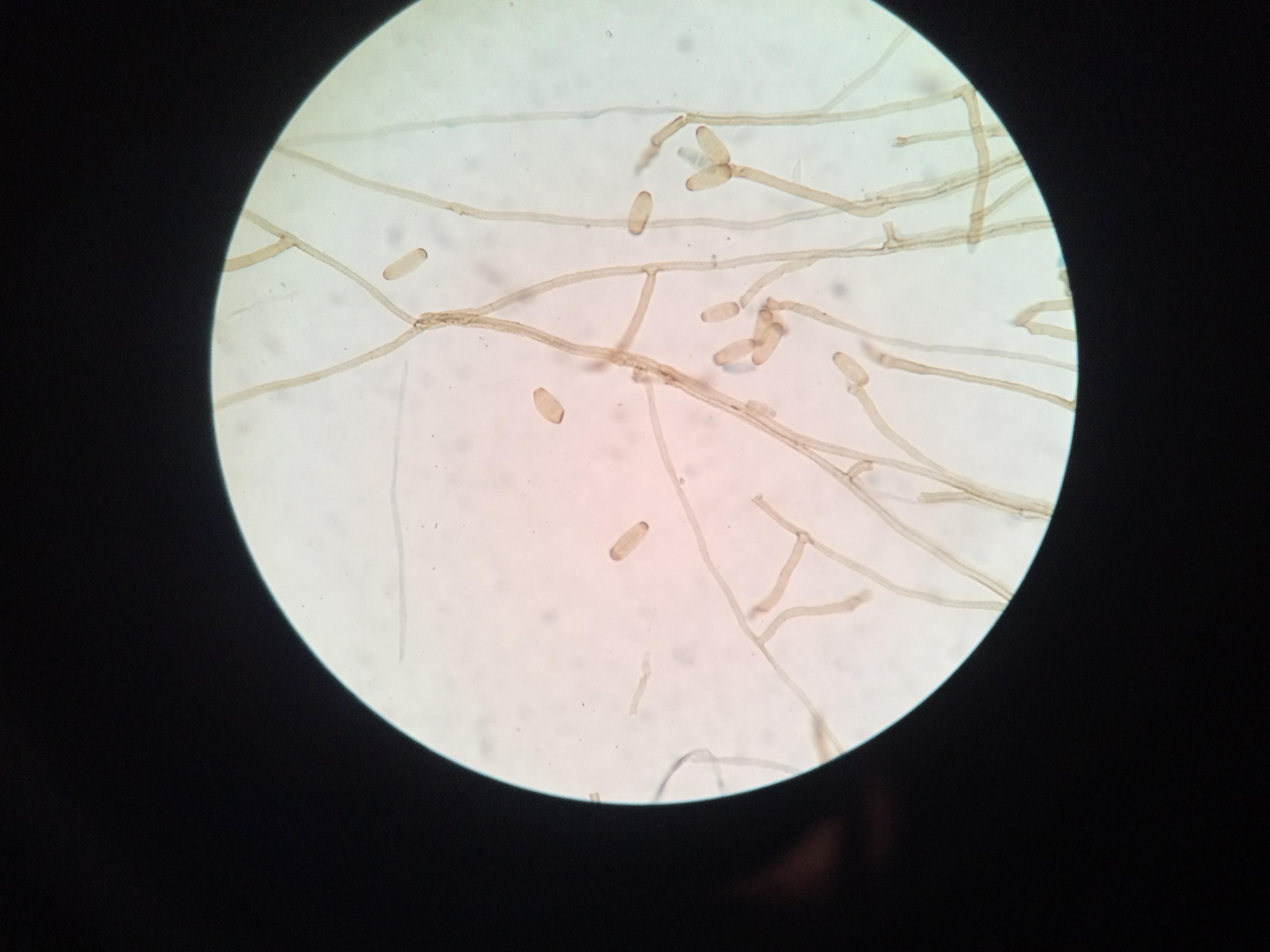 helminthosporium torulosum teniosis szarvasmarha féreg