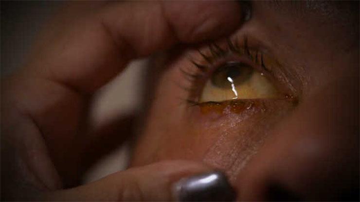 parazita alvás közben paraziták elleni gyógyszerek emberben