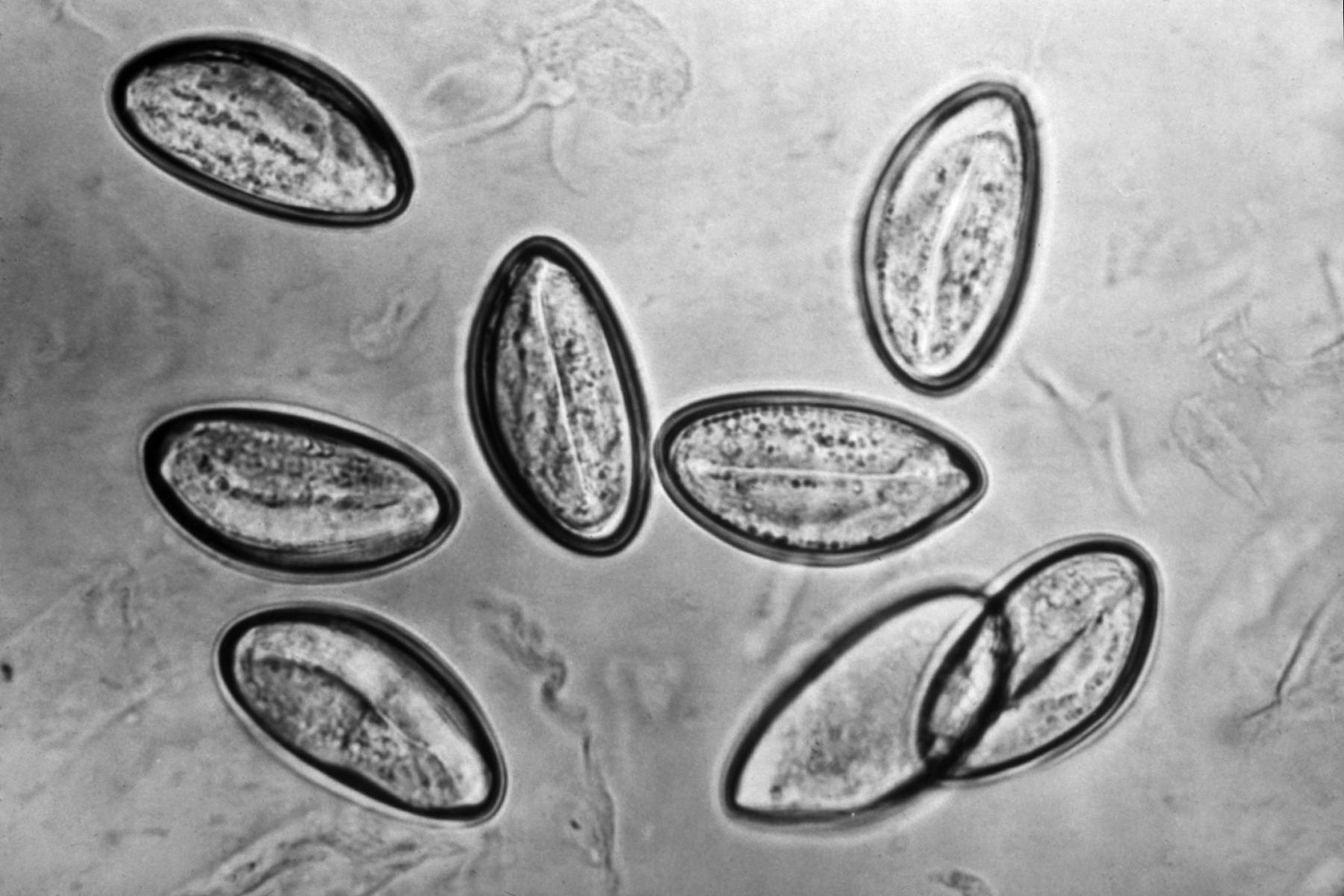 Pinworms férfiaknál tünetek