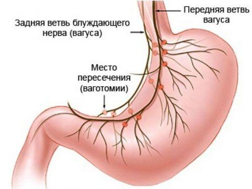 Az epe felszabadulása a szájüregbe, Epe a gyomor szagában a szájból