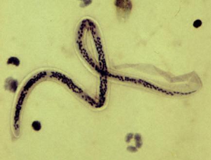 hamu paraziták kezelésére A férgek számára a férgek jobb neve