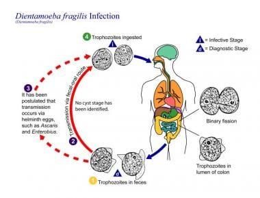 Helminthiasis patogenezis, Рубрика: A giardiasis patogenezise.