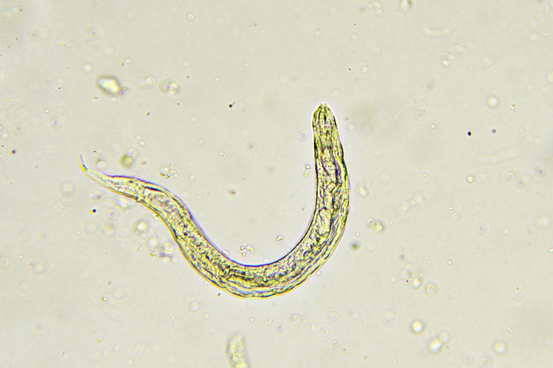 hogyan néz ki a pinworm