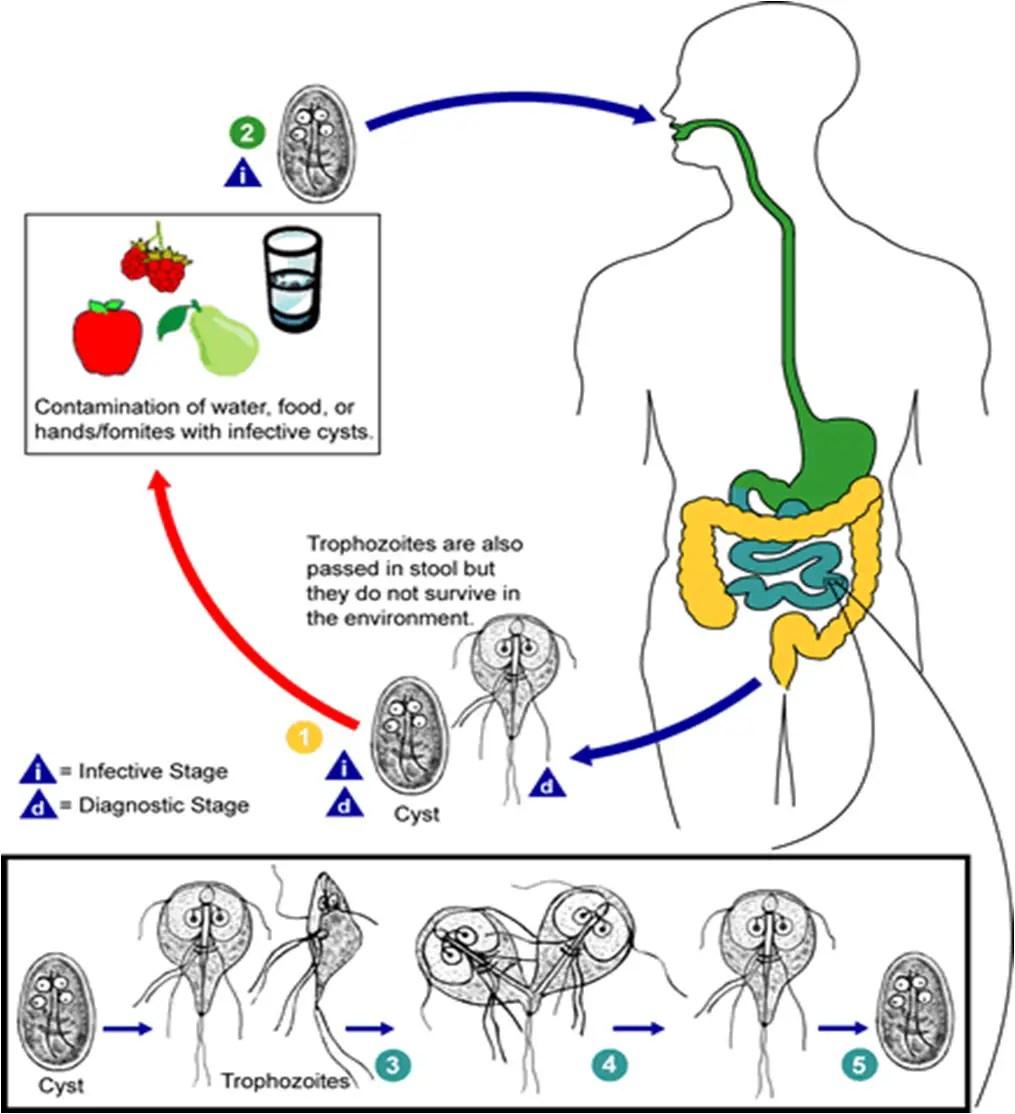 Giardiasisnak psoriasis