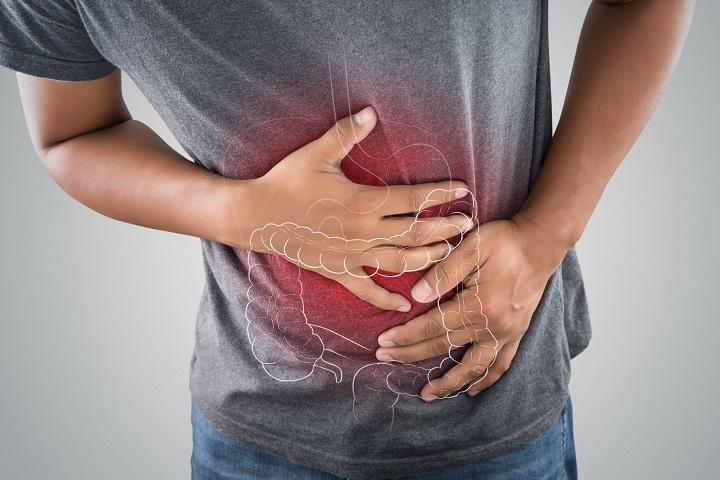 Bélgyulladások művészetterápiája | TermészetGyógyász Magazin