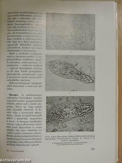 Diphyllobothrium latum infestatio