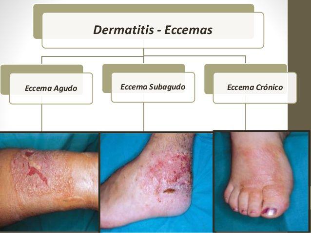 dermatitis kezelése férgekkel