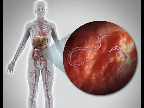 gyógymód az emberek parazitáira és férgeire platyhelminthes coelom üreg