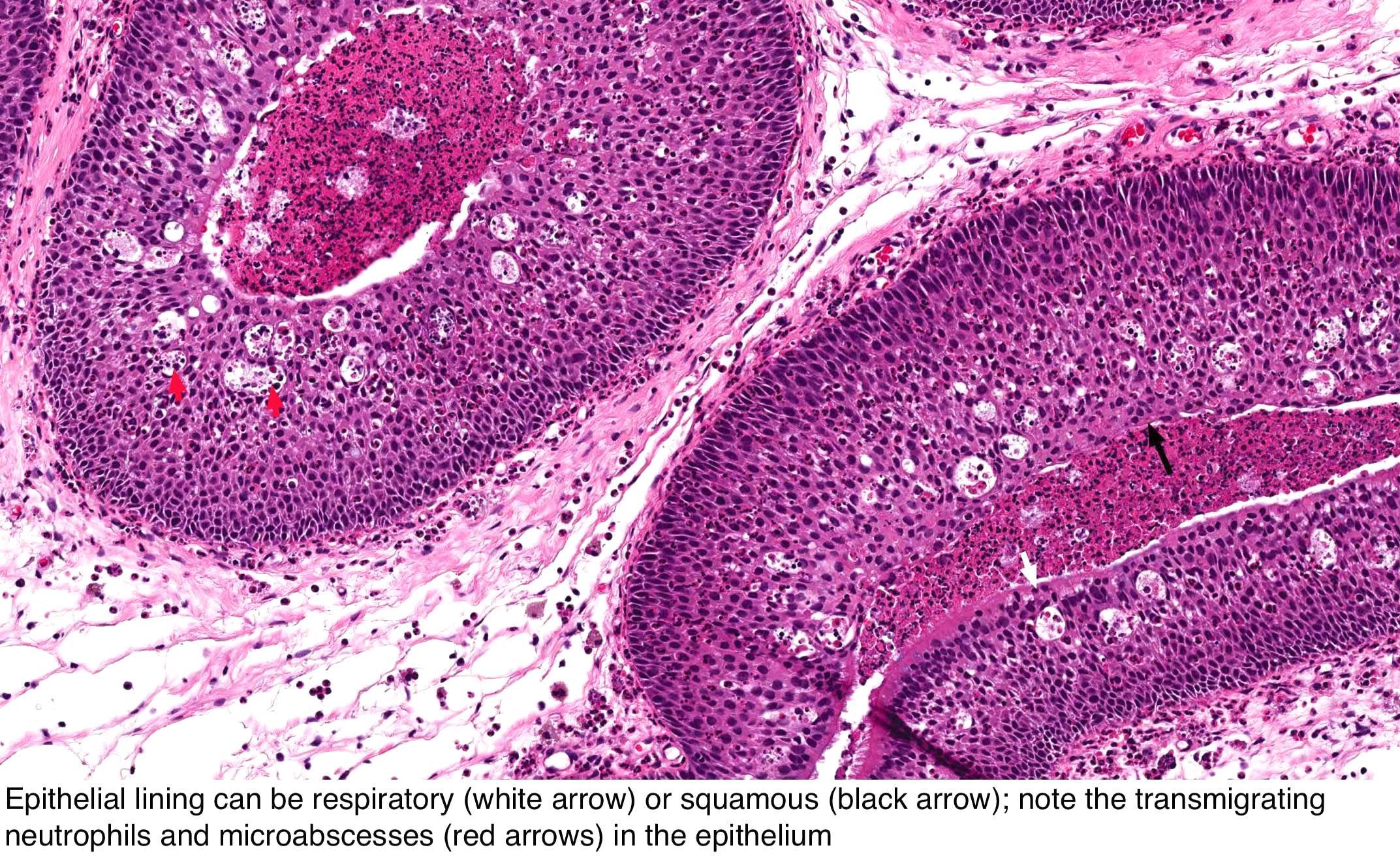Hogyan történik az enterobiosis és a bélféreg-tojás elemzése? - A Gyógyszer -