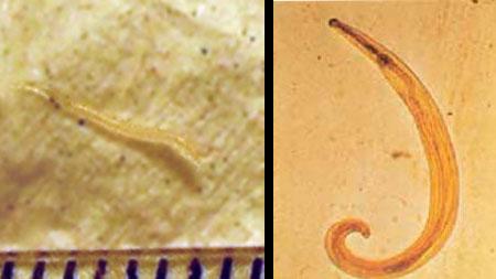 enterobiosis tojások féreg protozók rossz lehelet régi