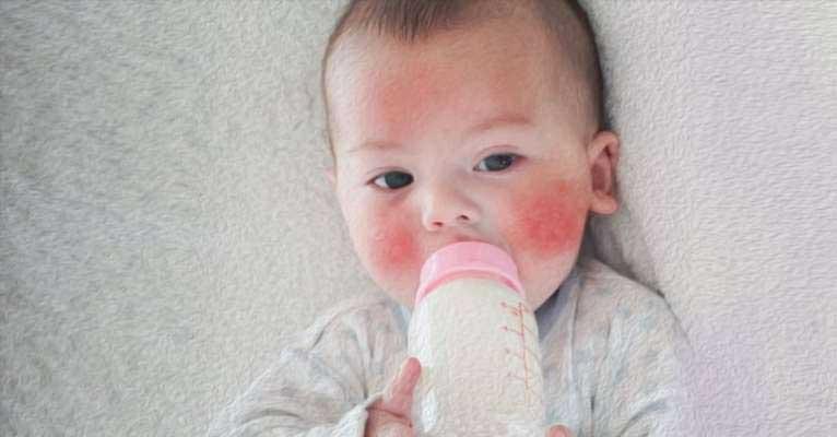 tejfehérje allergia tünetei csecsemőknél