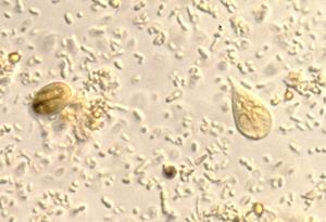 férgek készítése terhes nők számára hány év telik el az enterobiosisban