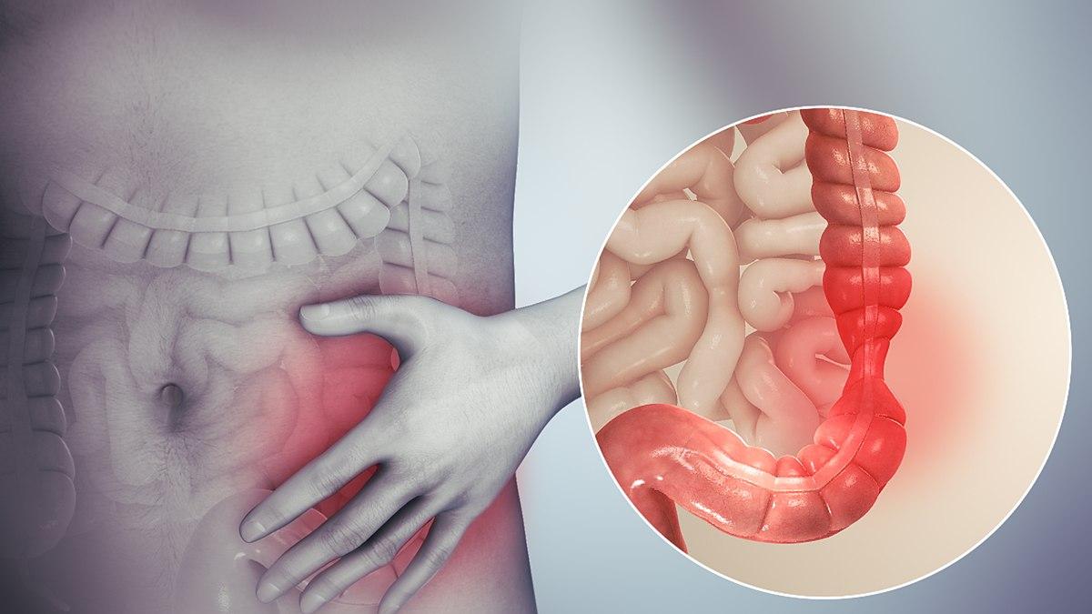 giardia left stomach pain babaférgek kezelési áttekintése