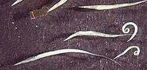 giardiasis felnőtteknél a bőr tünetei gyógyszer férgeknek a gv alatt