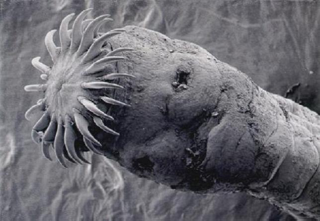 gyógyszer férgek férgek helmintájához szüreti parazita gyógymódok