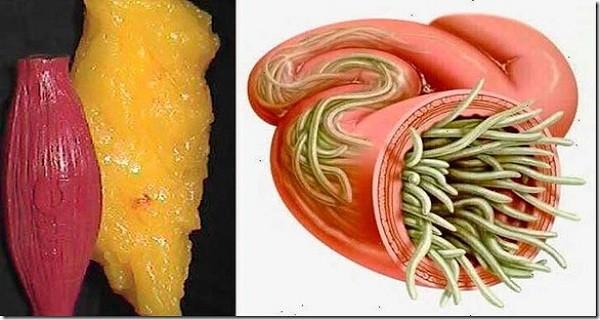három tabletta a paraziták számára
