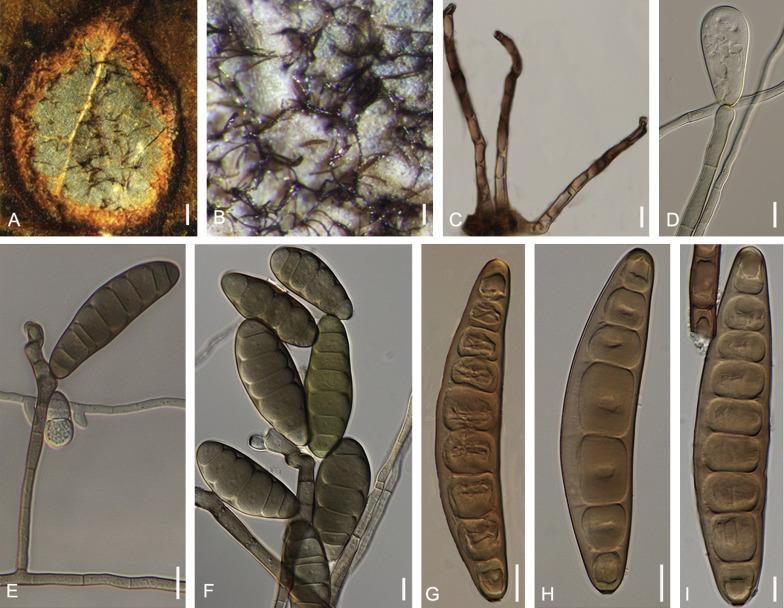 helminthosporium torulosum gyógynövény tabletták a paraziták számára