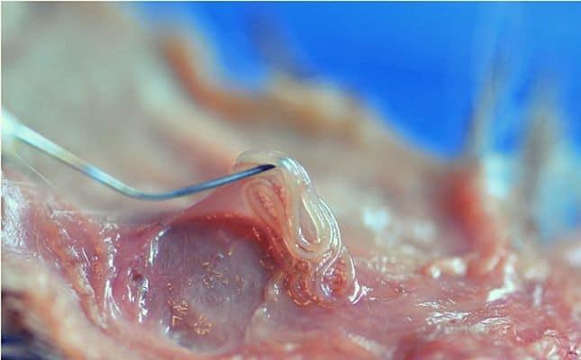Korbféreg betegség és az érintett szerv