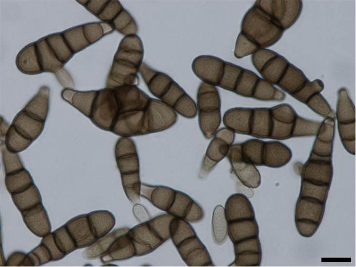 morfologi helminthosporium solani enterobiasis kezelése gyermekeknél