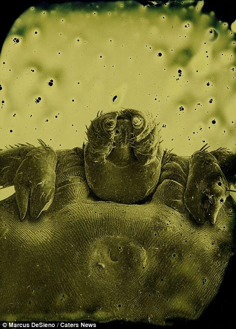 parazita vizsgálat A rimworld izom parazitái hogyan kezelhetők