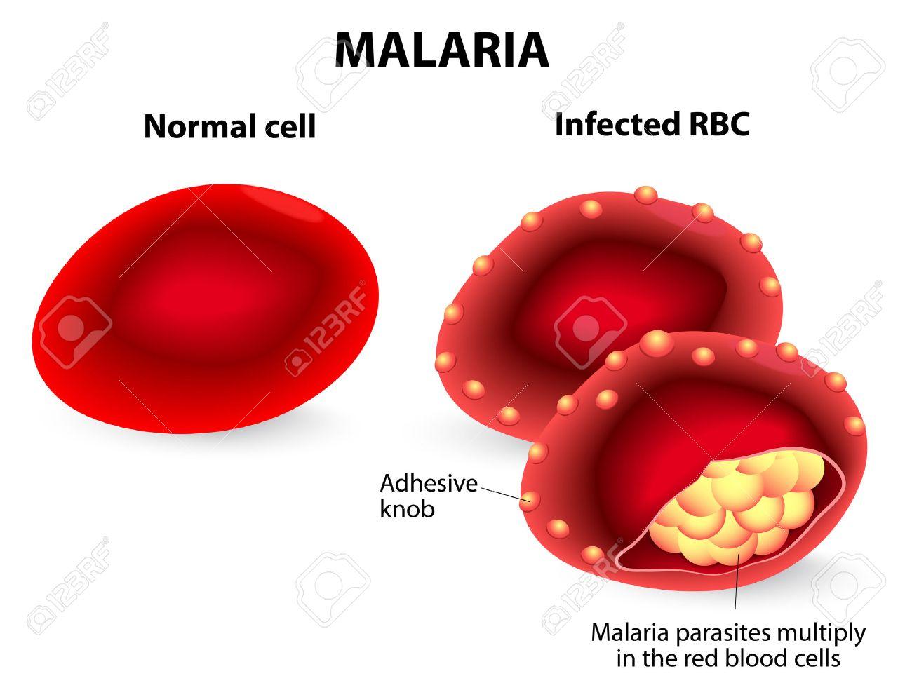 Malária plazmodium parazita - Pinworm bél malária plazmodium